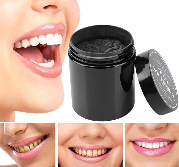 blanqueamiento dental con carbon activado