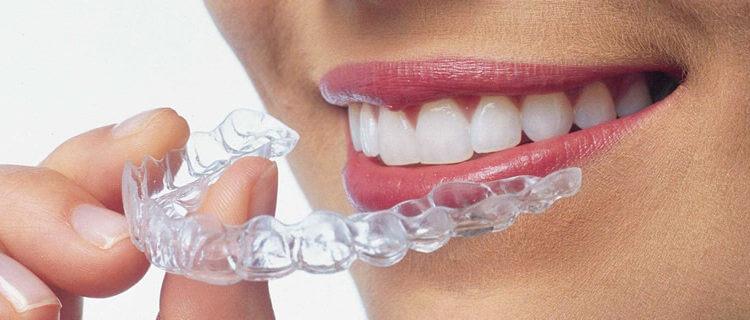 blanqueamiento dental con peroxido de hidrógeno